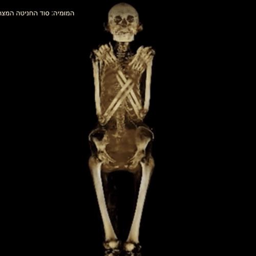 המומיה: מה התגלה בבדיקת הרנטגן?